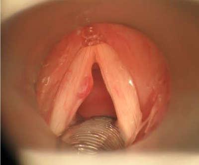 nódulo en la garganta cuerdas vocales